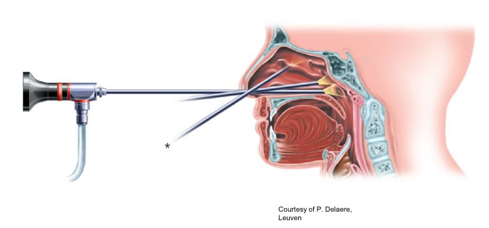 What is involved in the Nasal Endoscopy Procedure?